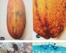 Mancha Fisiológica de la Papaya (Skin freckles)