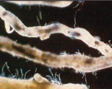 El nematodo reniforme del aguacate